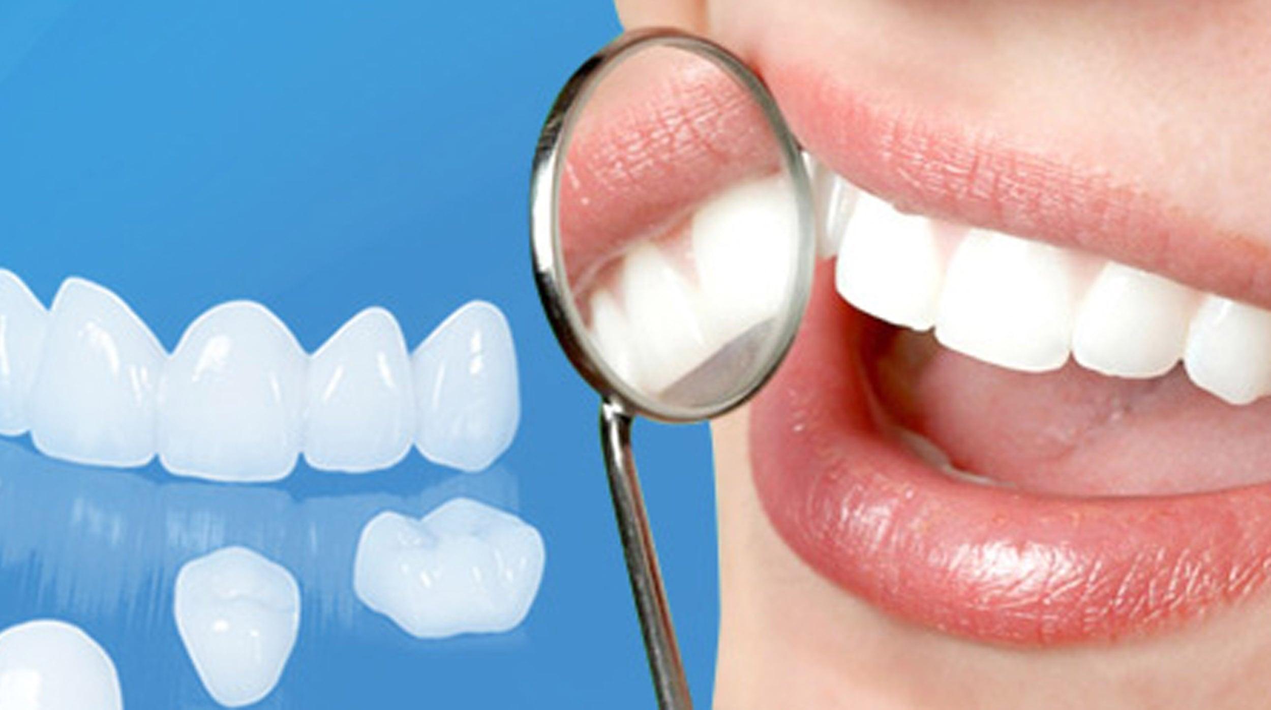 tẩy trắng răng tphcm